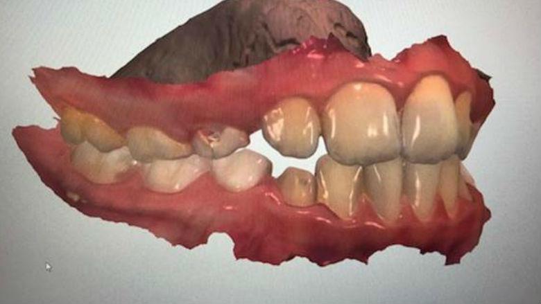 Utilizzo dello scanner intraorale in ortodonzia