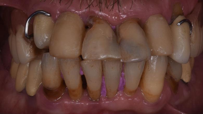 Risoluzione di un caso di parodontite aggressiva con preservazione crestale e chirurgia guidata