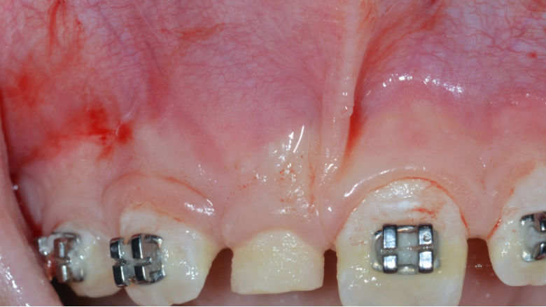 Diagnosi e trattamento multidisciplinare di un odontoma composto.  Descrizione di un caso clinico