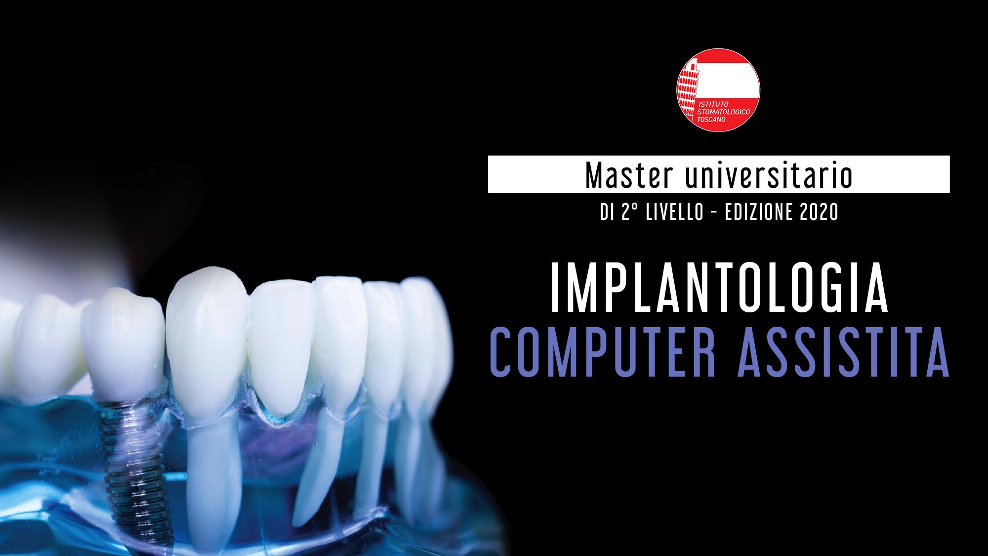 Master 2° livello in implantologia computer assistita 2019/2020