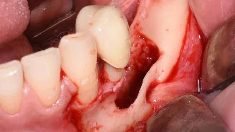 Chirurgia piezoelettrica dei denti inclusi: case report