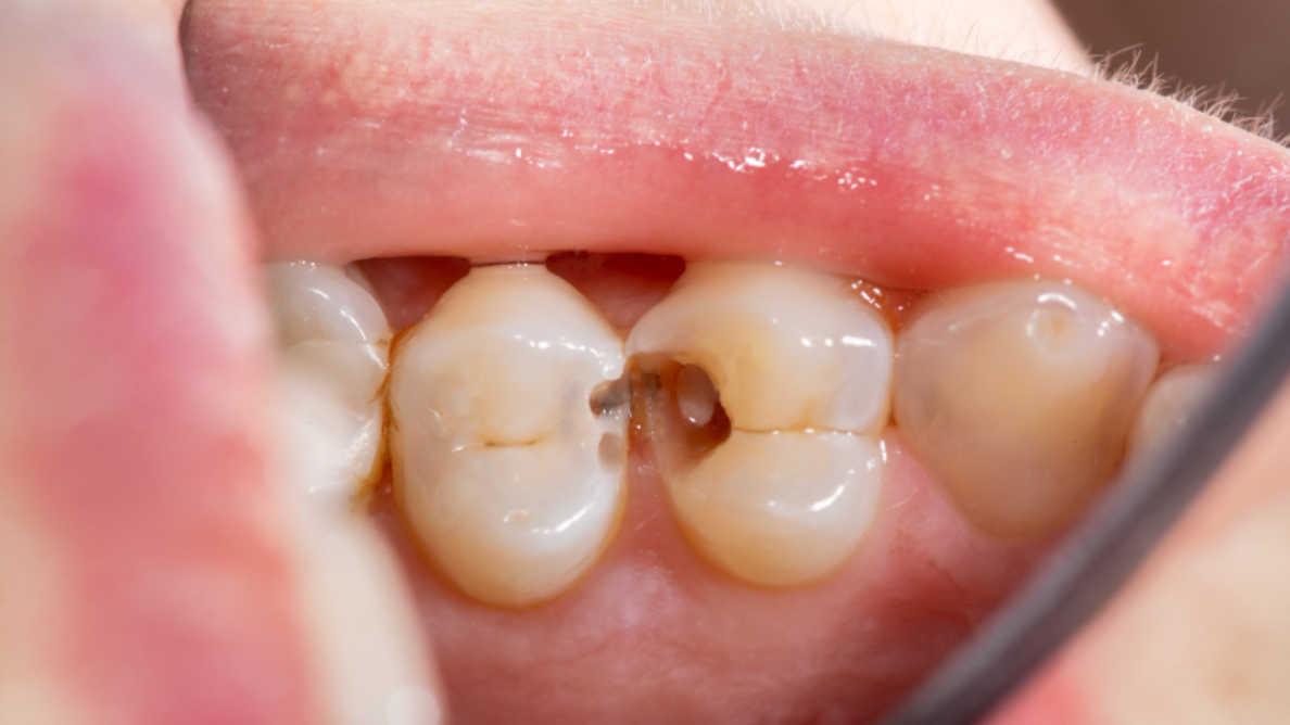 Uno studio offre nuove informazioni sulla malattia parodontale e sulla risposta dell'organismo