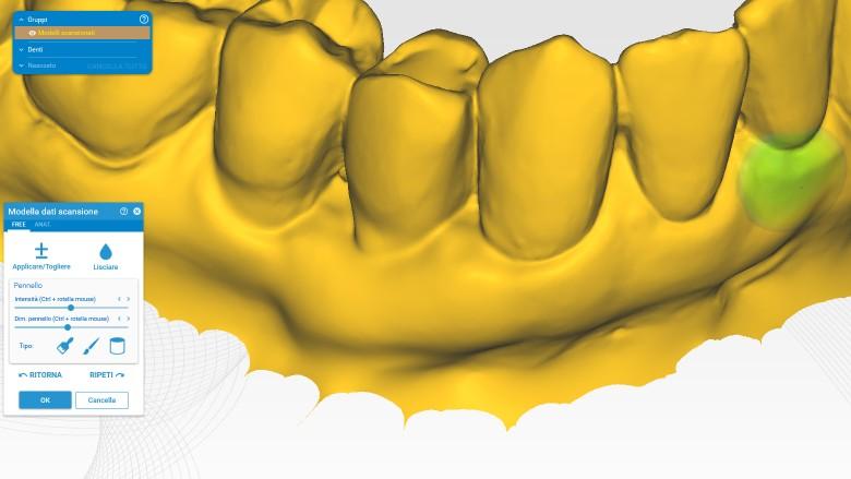 Valutazione CAD dei cambiamenti dimensionali dopo l'utilizzo di matrici in collagene