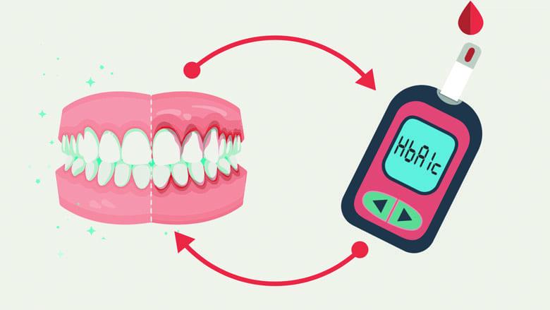 Conoscere e gestire efficacemente la correlazione tra diabete e parodontite