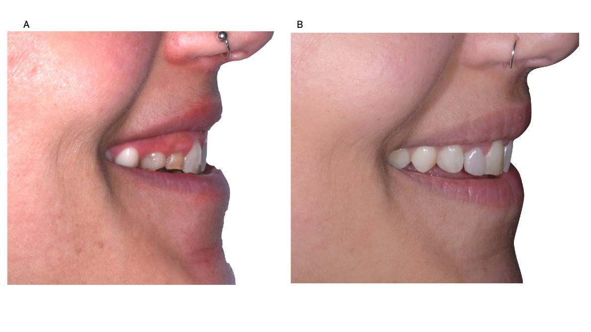 Piano di trattamento digitale in un caso di agenesia dentale multipla anteriore