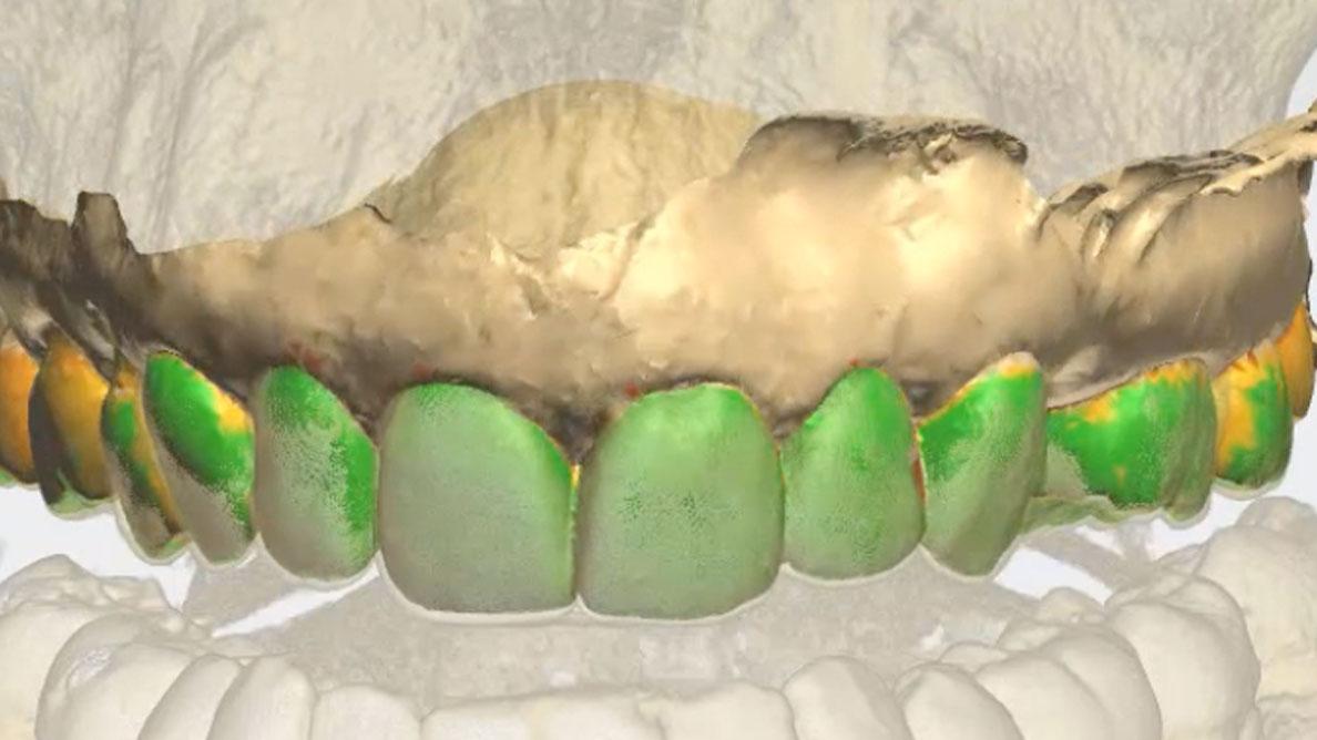 Elemento singolo in implantoprotesi in area estetica: proposta di protocollo clinico semplificato